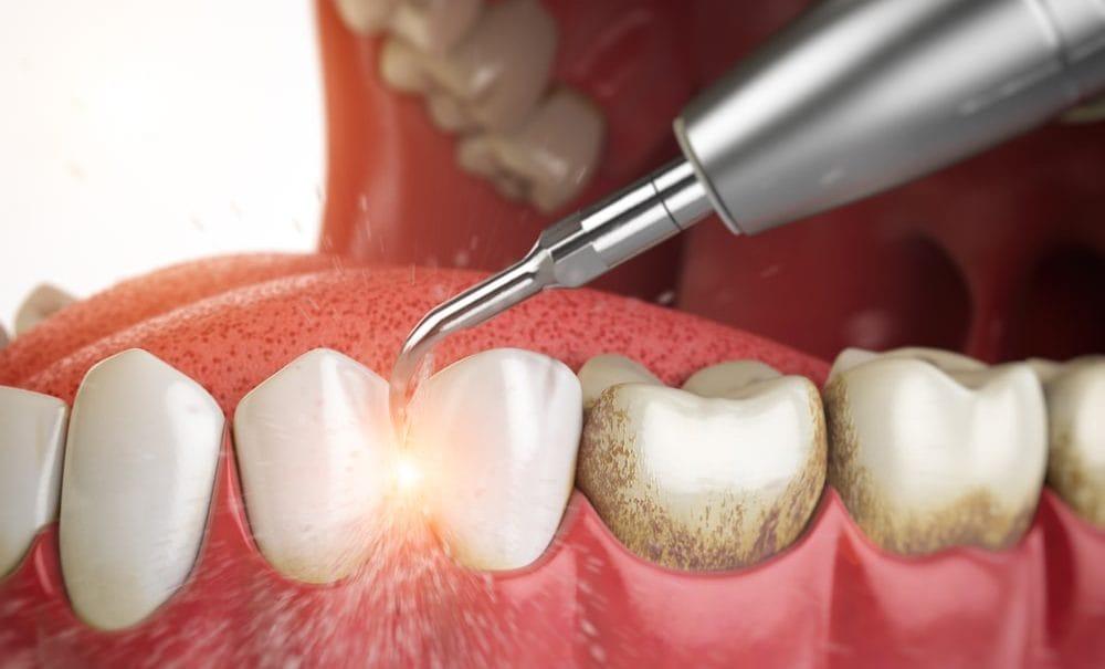 Причины зубного камня у детей
